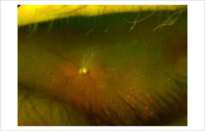 糖尿病網膜症 増殖糖尿病網膜症に対してレーザー治療を施行した眼底写真