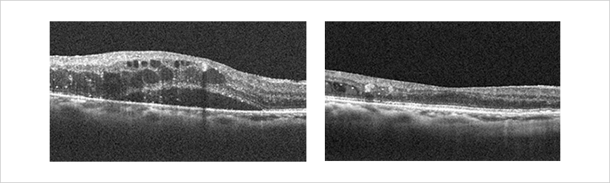 糖尿病網膜症 糖尿病黄斑浮腫に対する抗VEGF薬硝子体注射前後の光干渉断層計所見