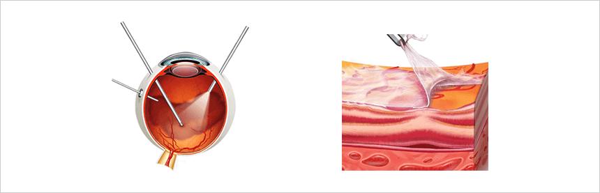網膜前膜・黄斑上膜 硝子体手術による網膜前膜除去イメージ