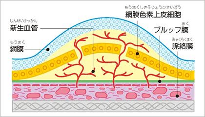 加齢黄斑変性のイメージ図