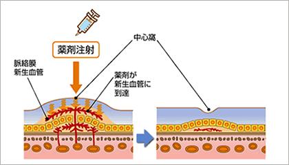 抗VEGF薬のイメージ図