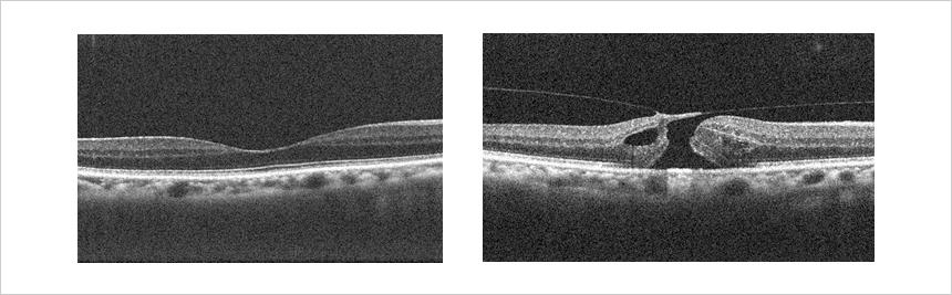 黄斑円孔 光干渉断層計(OCT)による網膜断面図