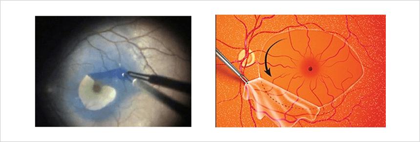 黄斑円孔 硝子体手術における内境界膜(ILM)剥離の実際の画像